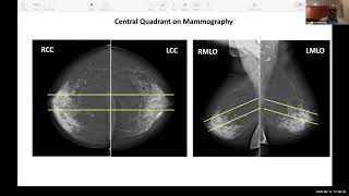 iBreastBook Webinar: Basics of Breast Surgery, Dr C  Koppiker, Central Tumours