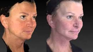 Facelift 3D Before and After - 8