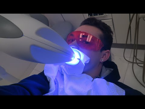 I GOT MY TEETH WHITENED BY A LASER! (Teeth Whitening)