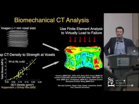 Pre-Operative Bone Strength & BMD Assessment in Spine Fusion Patients by Tony Keaveny, Ph.D.