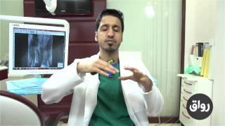 رواق : مدخل إلى طب الأسنان - المحاضرة 2 الجزء 2