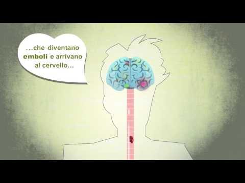 Un video-cartoon 'salva-cuore', aiuta a riconoscere la fibrillazione atriale