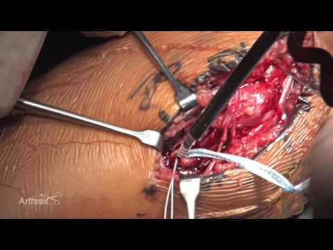 Ulnar Collateral Ligament Repair Using InternalBrace™ Ligament Augmentation