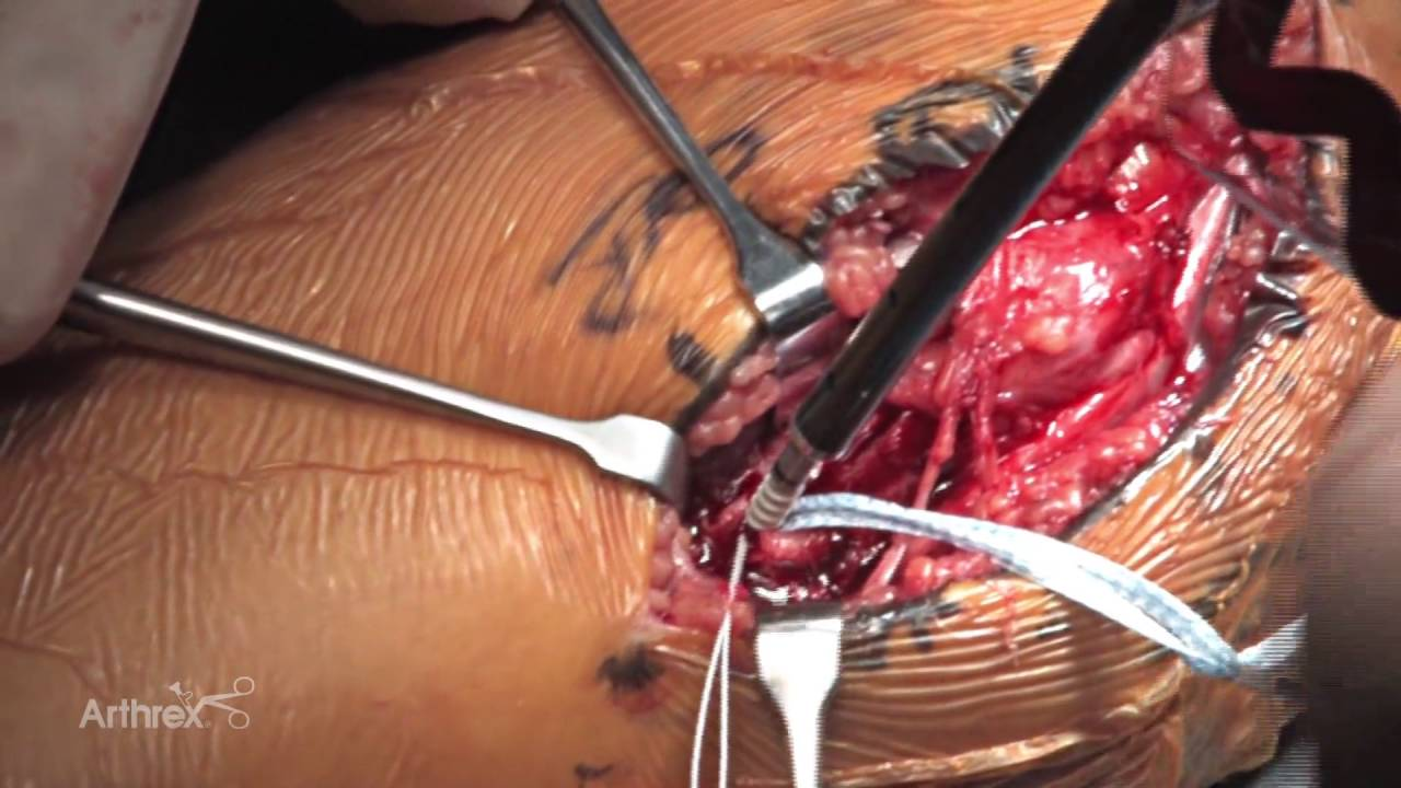 Ulnar Collateral Ligament Repair Using Internalbrace
