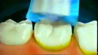 Oral-B Braun 3D Plaque Remover TV Ad (1998)
