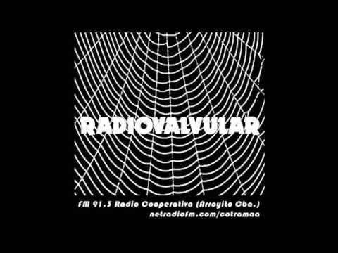 Separador RadioValvular (Standard Electrics)