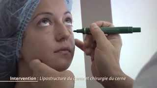 Chirurgie des cernes - Lipostructure du cerne
