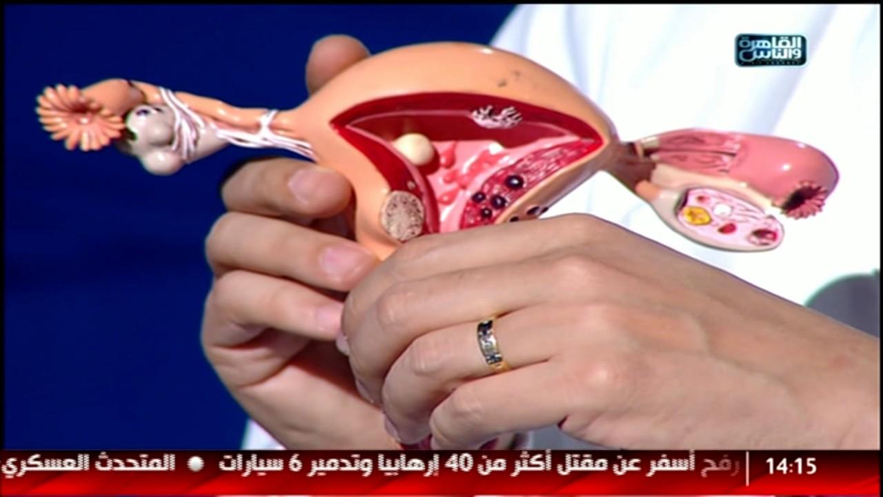 علاج بطانة الرحم المهاجرة 10