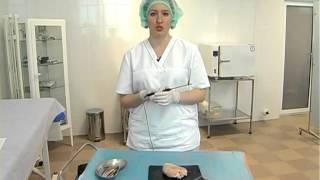 видео Аденомиоз матки: что это такое, диагностика, лечение, прогнозы