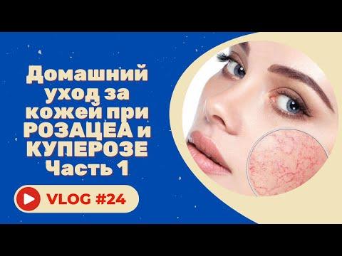 #24 Домашний уход за кожей при розацеа и куперозе. Советы косметолога. Часть 1.