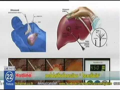 """เทคโนโลยีใหม่ในการรักษา """"โรคมะเร็งตับ"""""""