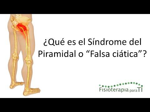 grado de incapacidad por dolor de espalda secretos