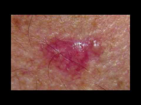 Boston Dermatology Group Discusses Basal Cell Carcinoma