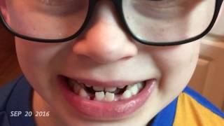 Elliott's 1 Second Everyday video from September