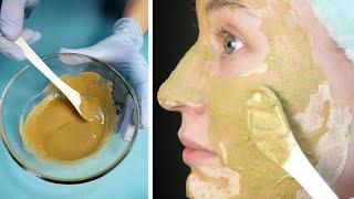 ОТБЕЛИВАЕМ ПОСТАКНЕ Маска для лица фарфоровая кожа Как избавиться от ПОСТАКНЕ