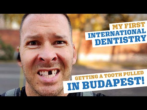 I Got A Tooth Pulled In Budapest!? My Dental Tourism Experiment...