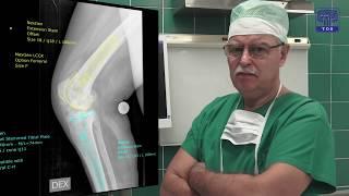 Gūžas un ceļa locītavas endoprotēzēšana Traumatoloģijas un ortopēdijas slimnīcā