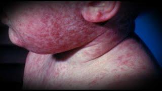 Epidémie de rougeole : l'OMS veut vacciner l'Europe