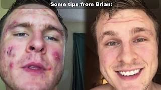 Cystic Acne - Brian Turner's Miracle Story!  Cure Cystic Acne! 👍👍👍👍