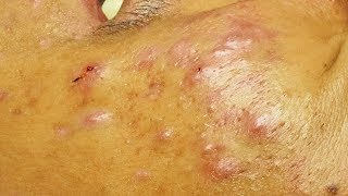 Enlever les points noirs, les microkystes et un acné kystique (a cystic acne)