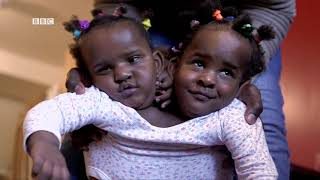 Gambar cover 🇸🇳 Des jumelles siamoises qui luttent pour leur vie - La Vie S01 E06 *** BBC Afrique