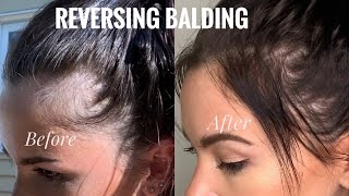 Regrowing my Hairline | PROOF Subliminals Work | Baldspot Hair Regrowth without SURGERY | VLOG