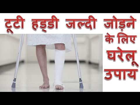 टूटी हड्डी जल्दी जोड़ने के लिए रामबाण दवा और 5 आसान घरेलू उपाय