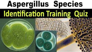 Aspergillosis adalah sekelompok penyakit yang disebabkan oleh sejenis jamur bernama aspergillus. Pen.