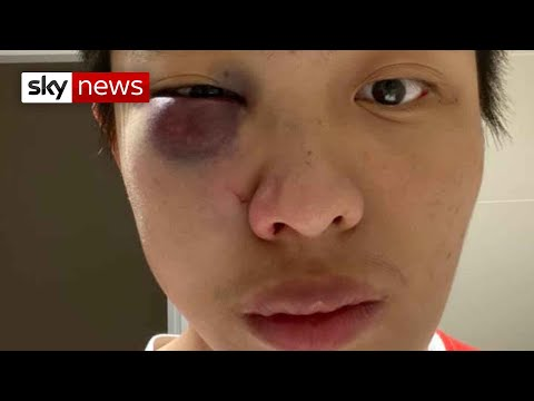 Coronavirus: Hate crimes against Chinese people in the UK on the rise