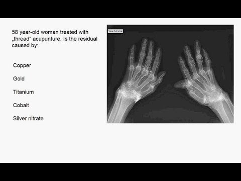 Charité Clinical Journal Club by Fred Luft - 08.11.2017