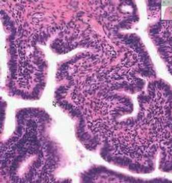 Shotgun Histology Fallopian Tube - YouTube