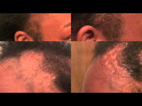 Dr Miracles DOES WORK! Temple and Nape Balm Review