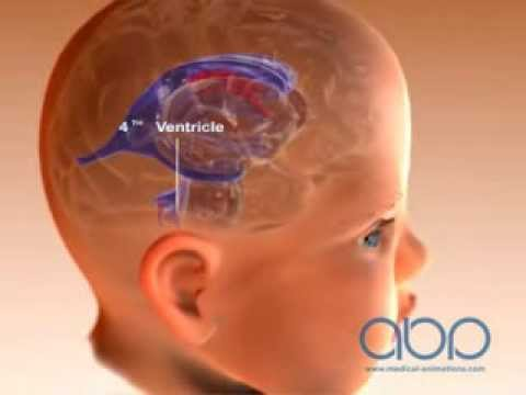 Brain Ventricle of a Baby