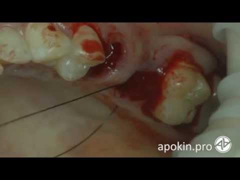 Как дергают корни зубов видео
