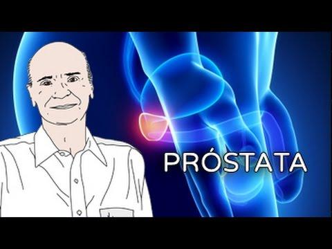 problemas de próstata causa 3d