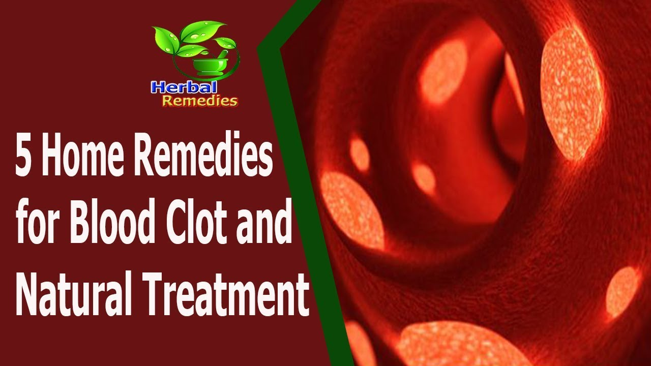 how to stop a blood clot at home