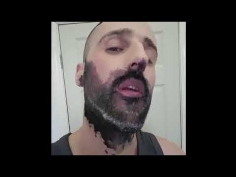 Beard Dye Gone Wrong Lol