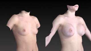 Breast Enhancement 3D Before and After-16