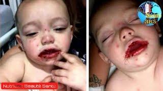 Cette maman trouve des plaies sanglantes dans la bouche de son bébé de 1 an.