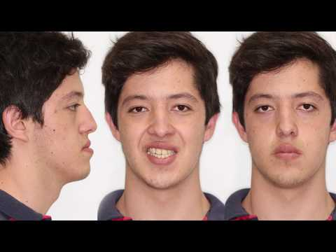 Prognatismo mandibular, cómo se corrige.