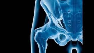 Top 3 Strengthening Exercises Of A Weak Hip