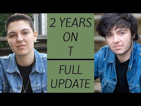 2 Years on Testosterone // Full Update // FTM Transgender