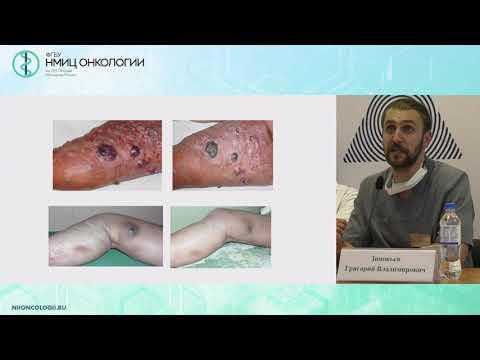 Место хирурга в стадировании и лечении меланомы кожи