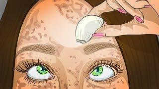 видео Как убрать пигментные пятна на лице: 3 способа, 7 косметических средств, 6 народных рецептов