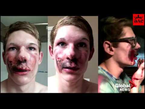 E-Cigarette explodes compilation : Caught on Video
