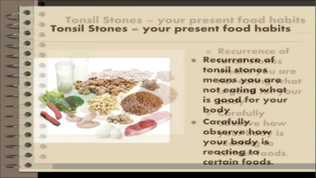 Natural Remedy For Tonsil Stones Free