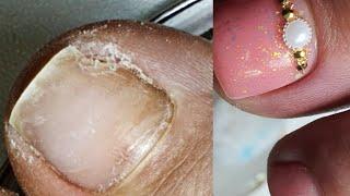 Протезирование ногтя на ноге педикюр переношенное покрытие на ногах