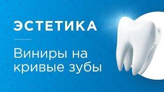 Установка виниров на искривленные зубы. Ответы на часто задаваемые вопросы