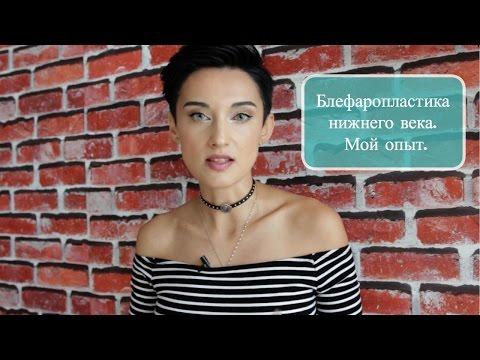 Блефаропластика нижнего века. Lower Lid Blepharoplasty - My Experience (Russian language video)