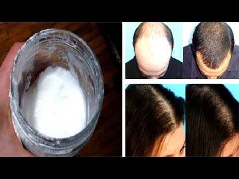 This Baking Soda Shampoo Will Make Your Hair Grow Like Crazy!